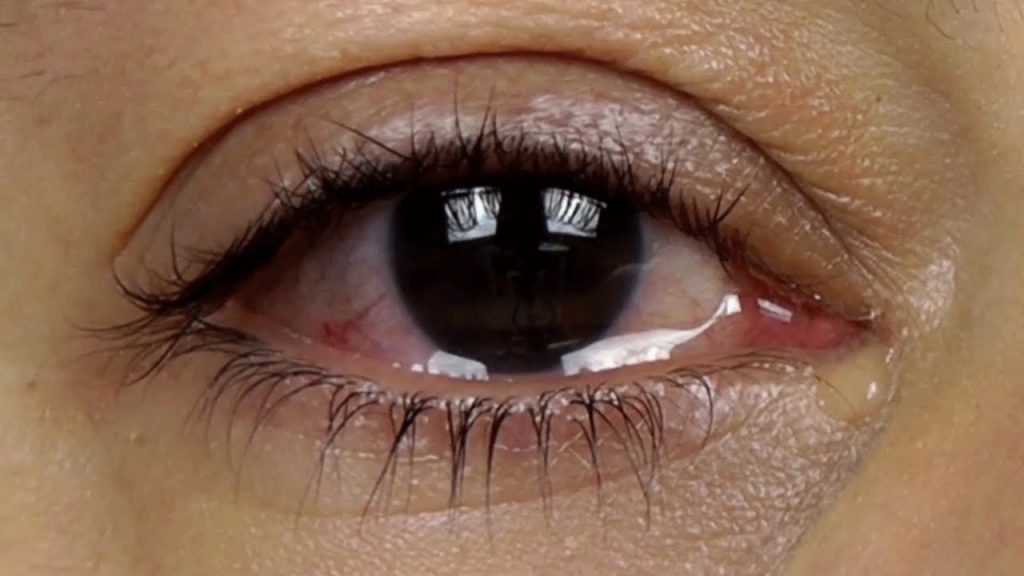 PURELY NATURAL EYE DROPS FOR WATERY EYES