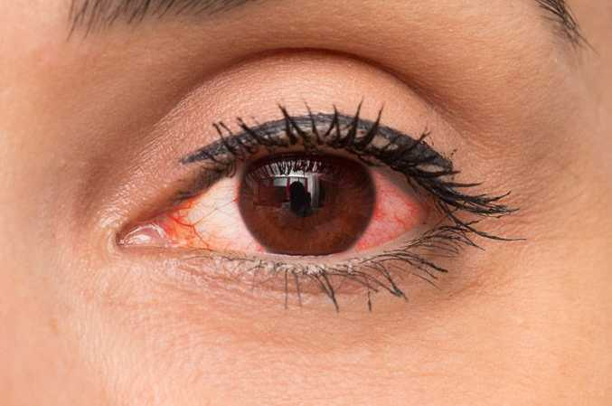 EYE DROPS FOR RED EYES IN INDIA