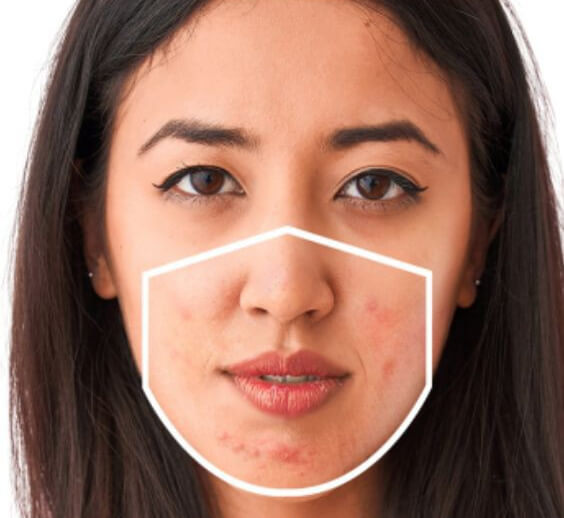 IS WEARING A FACE MASK CAUSING YOUR SKIN TO BREAK OUT?